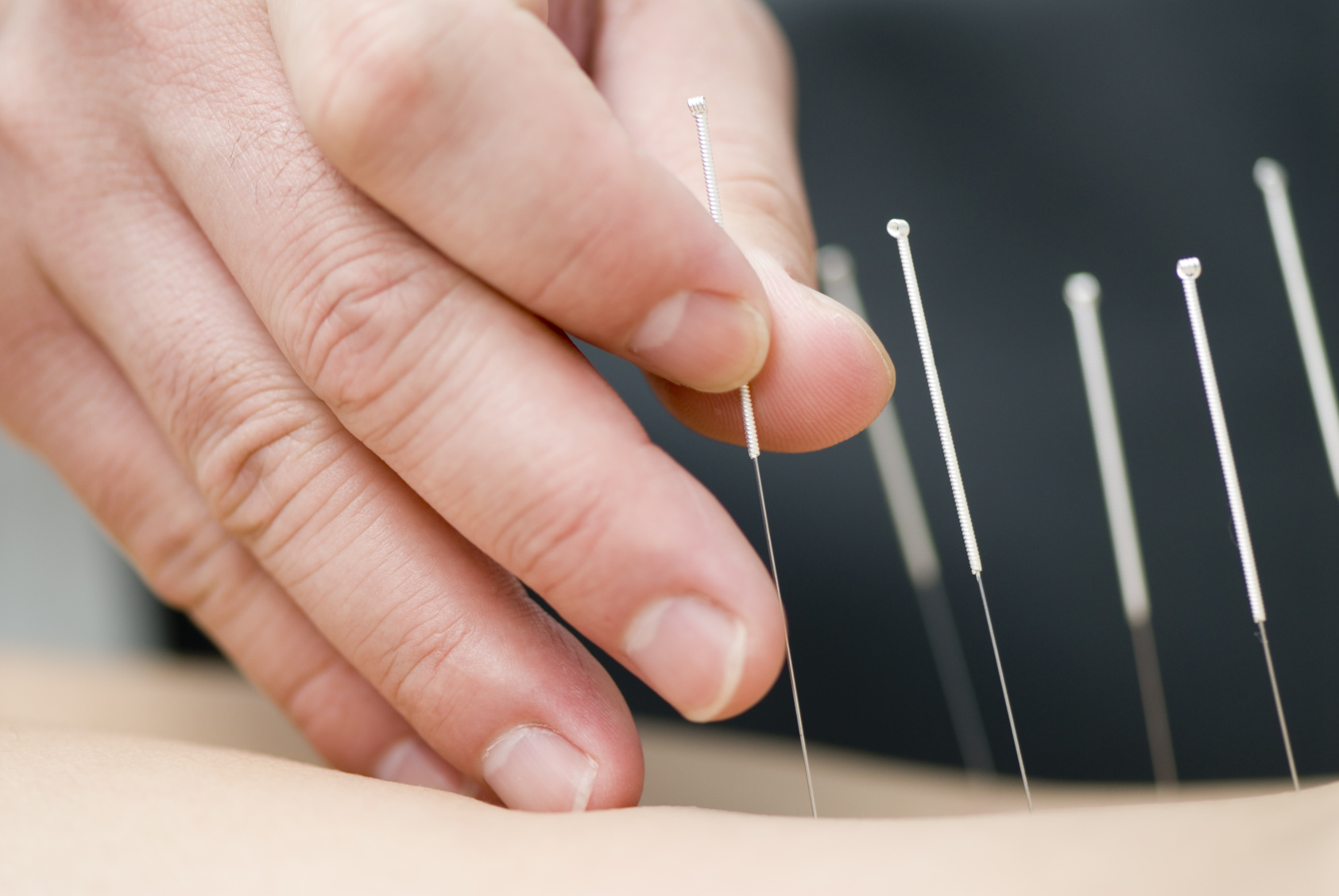Acupuncture & Infertility